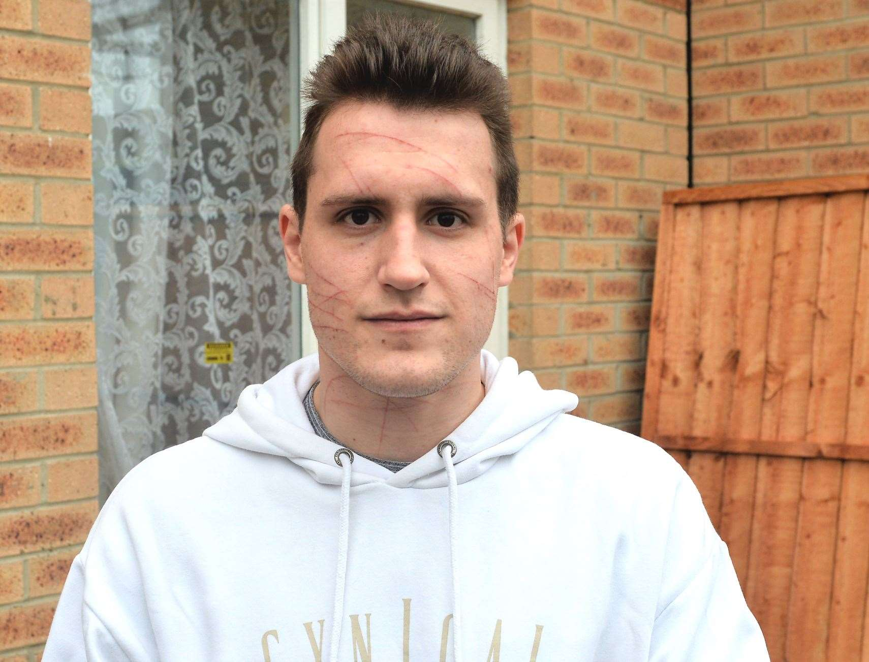 Richard Phillips, 23, was making his way to work at around 10.45pm when he was ambushed close to the skate park.
